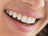 dental-adelaide