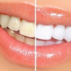 teeth whitening adelaide